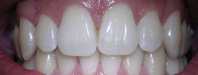 Herbs for teeth and gums?